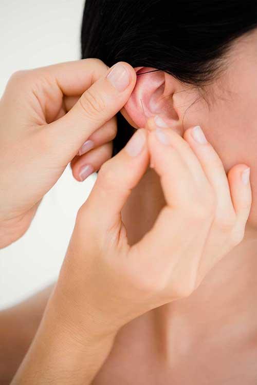 Stress reduzieren mit Akupunktur